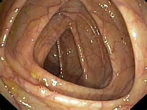 Colonoscopy: It's All in the Preparation Colonoscopy