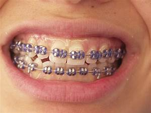 purple braces!! | braces | Pinterest | Braces and Purple