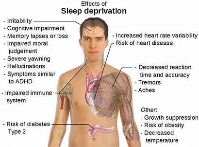 Sleep Healthy Deprivation Effects Eyes Mine Rest