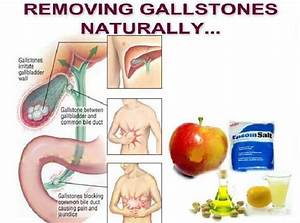18 Natural Gallstones Home Remedies