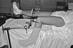 3 Skeletal Traction In A Diaphyseal Fracture Of The Femur