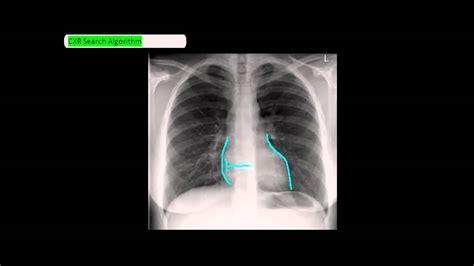 chest ray reading method 5fs