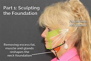 Facelift St  Louis Face Lift