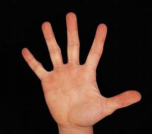 Study Finds  If Your Hand Is Bigger Than Your Face You