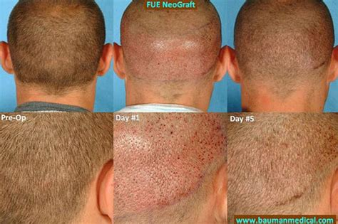 Hair Implants Yonkers Ny 10702 Neograft Device Improves Hair Transplants In