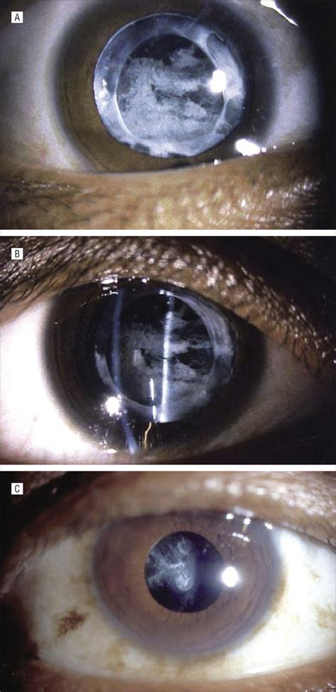posterior capsular opacification  problem reduced    eradicated cataract
