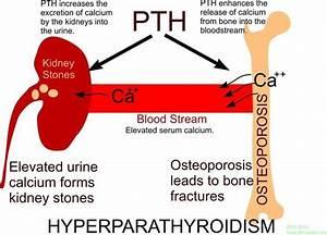 Hyperparathyroidism Hyperparathyroidism