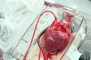 7 Top Innovation In Disease Diagnosis And Operating For Heart