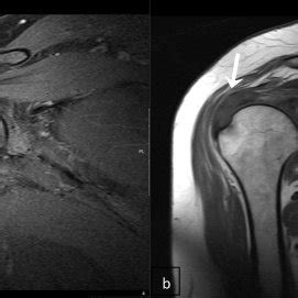 MRI coronal T2 (a), PD with fat suppression (b) and T1 (c ...