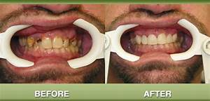 Mintalar Dental - Smile Gallery of Cosmetic and ...