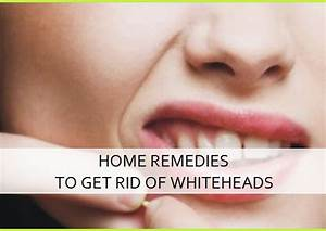 Home Remedies to get rid of the whiteheads fast