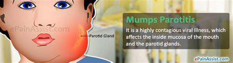 Mumps Disease Treatment