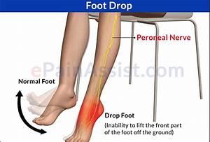 multiple sclerosis nerve pain treatment