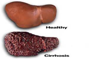 ... hepatitis such as interferon for viral hepatitis and corticosteroids  Hepatitis Cirrhosis