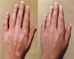 vitiligo cover