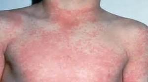 Strep Throat Rash, Symptoms, Treatment & Complications  Strep Throat Throat Disorders