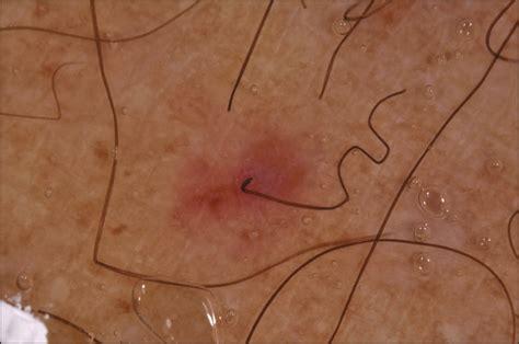 follicular hyperkeratosis hemorrhage  corkscrew hair
