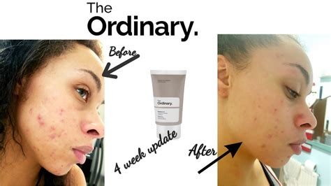 The Ordinary Retinol 1% Review Week 4 Before And After