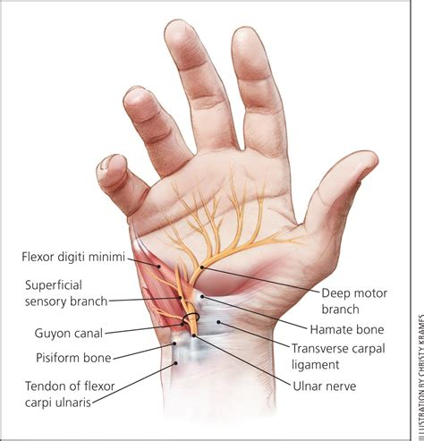 Evaluation and Diagnosis of Wrist Pain: A Case-Based
