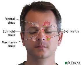 Sinus Infection Symptoms