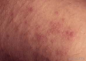 what is prickly heat rash with pictures