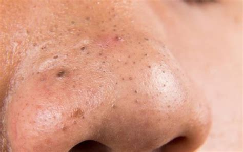 10 Simple Natural Remedies To Get Rid Of Your Blackheads