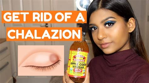 how to get how to get rid of a chalazion fast at home