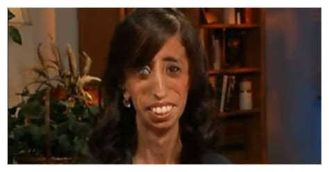 worlds ugliest woman  courageous interview