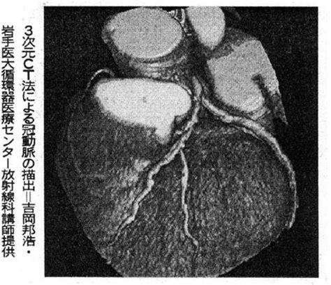 胎盤 石灰 化