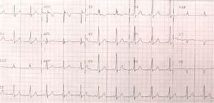 Wolff Parkinson White Syndrome Delta Waves  With Images