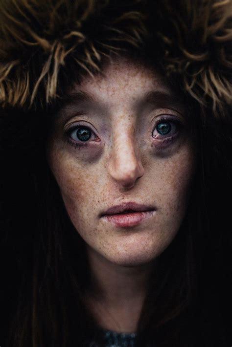 year  born  extremely rare facial condition