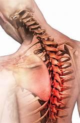 Лечение позвоночника остеохондроз