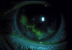 What is Herpes Keratitis? - American Academy of Ophthalmology