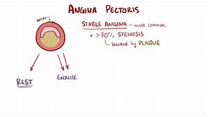 Angina Pectoris   Stable Unstable Prinzmetal Vasospastic