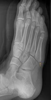 Jones Fracture Versus Normal Apophysis - Sumer's Radiology