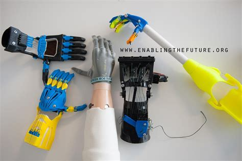 fact  nable  printing hand prostheses  build