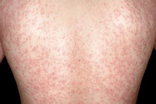 Chicken Pox and Measles Pictures