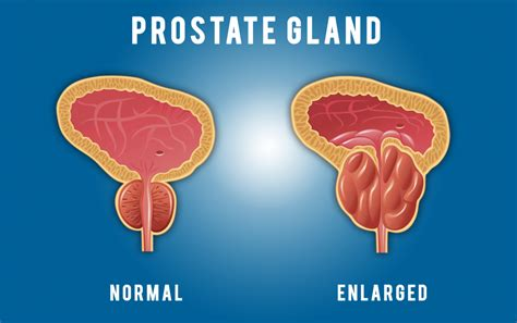 prostate prostate signs