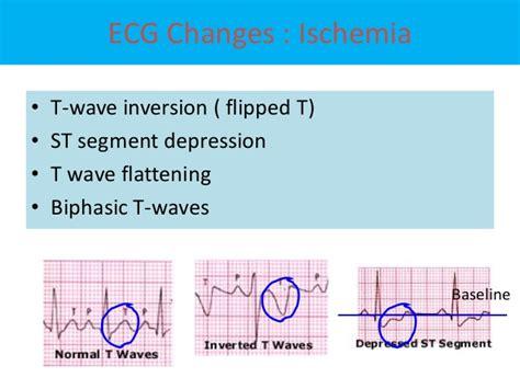 Ecg Changes In Acute Myocardial Infarction