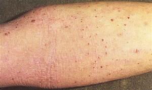 Безгормональное лечение псориаза
