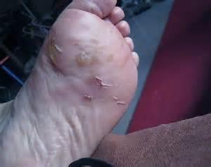 Dyshidrosis On Feet