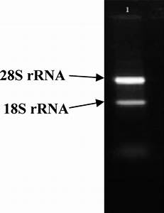 Total Rna Electrophoresis  Upper Band Shows 28s Rrna And Lower Band