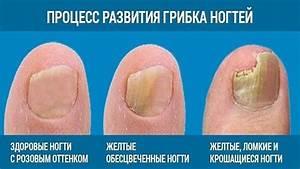 Лечение грибка ногтей у грудничка