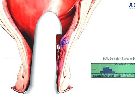 Human Reproductive Organ During Sexual Intercourse Hot Nude