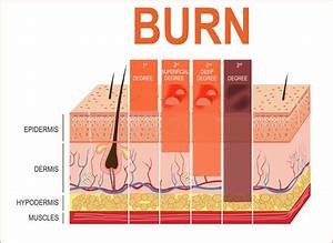 The Different Degrees Of Burn Wounds According To Skin