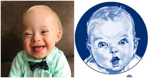 gerber syndrome lucas baby down warren downs ever