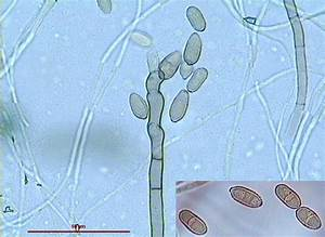 Cladosporium spp. | AirAllergy.be