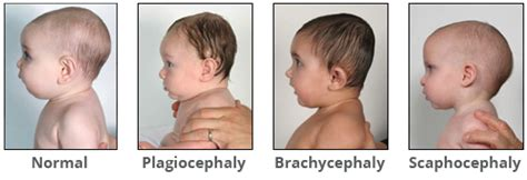 Baby Head Shape Assessment For Plagiocephaly Flat Head