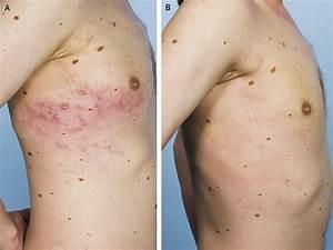 melanoma metastasis - pictures, photos
