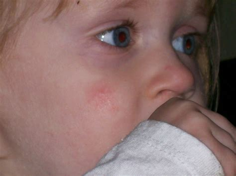 Search Results For Yeast Toddler Rash Remedy Yeast
